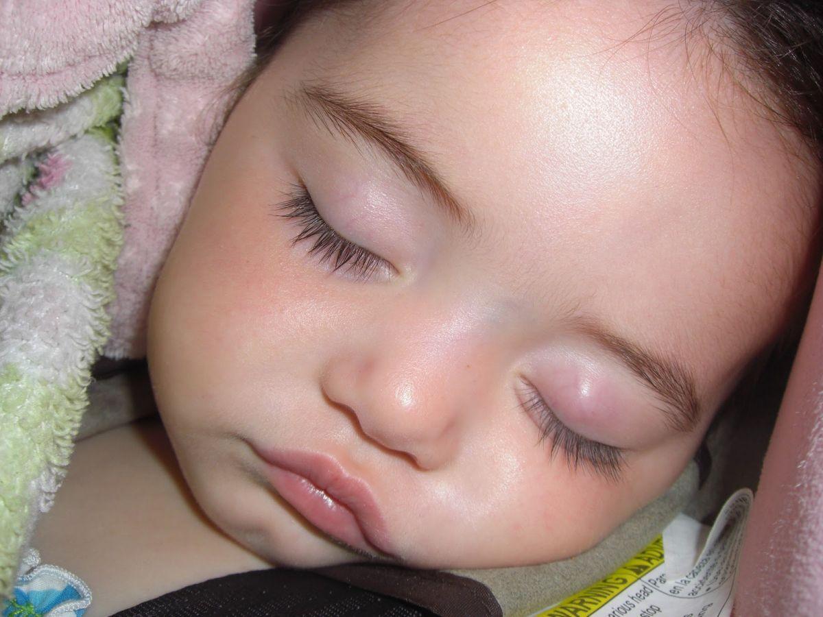 Ячмень у ребенка начальная стадия фото
