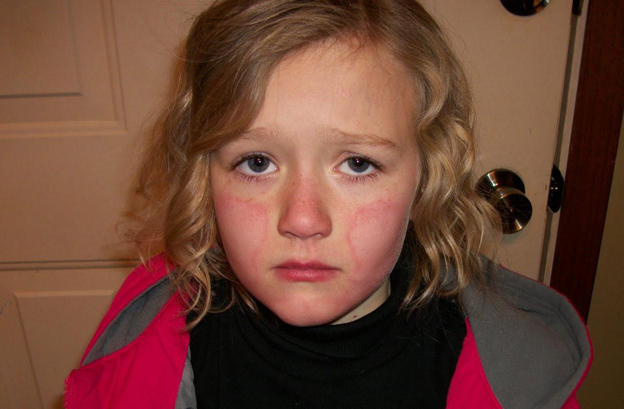 Чем могут быть вызваны покраснения на лице возле рта
