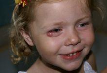 Ячмень у ребенка (фото)
