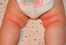 потница у новорожденных фото