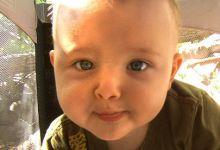Искривление перегородки носа у ребенка