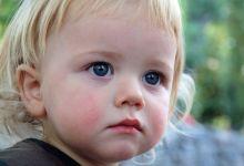 Cиняки под глазами у ребенка: причины