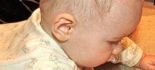 Насморк у новорожденных и грудничков