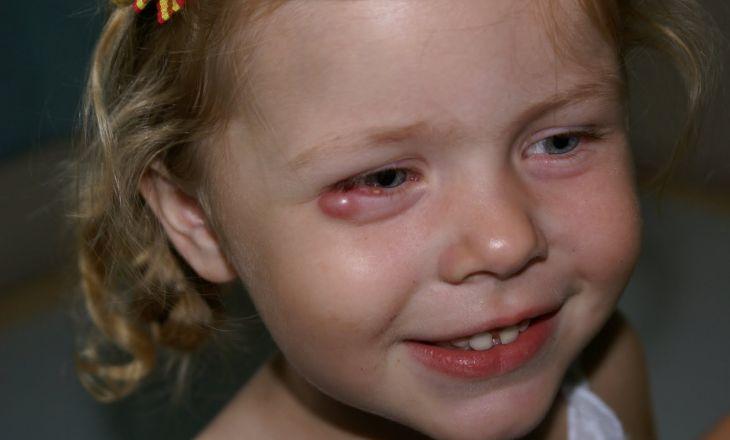 Фото ячменя у маленького ребенка