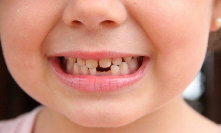 Когда выпадают молочные зубы у детей: схема