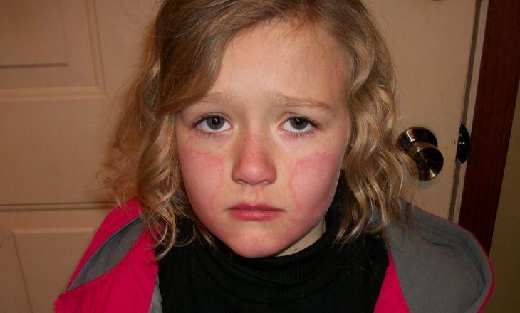 обморожение щек у ребенка фото