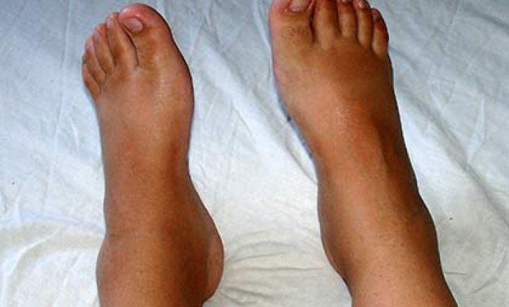 Отёчность ног при беременности