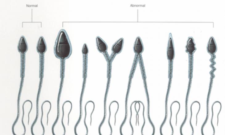 Морфологический анализ спермы