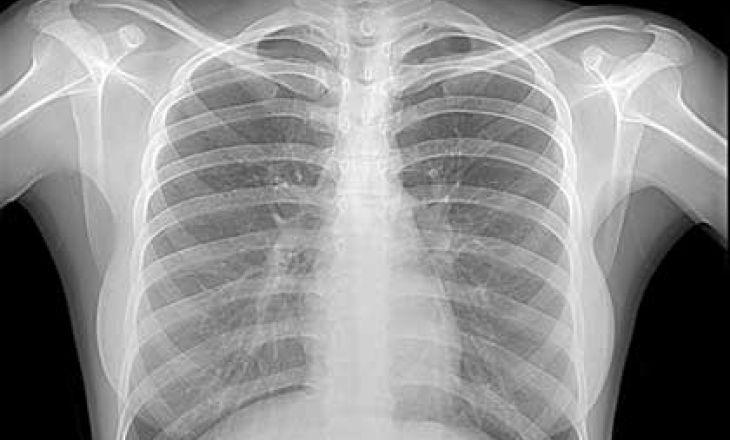 Рентген грудной клетки во время беременности