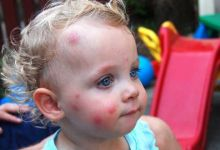 Как защитить ребенка от комаров на улице?