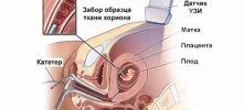 трансвагинальная биопсия ворсин хориона