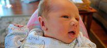 Кефалогематома у новорожденных (фото)
