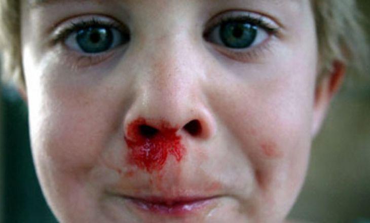 Как остановить кровь из носа у ребенка