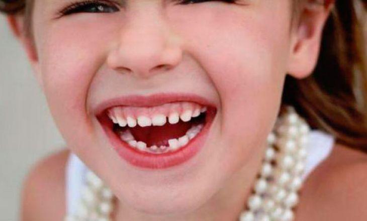 Как выпадают молочные зубы?